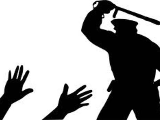 पुलिस हिरासत में युवक की मौत पर बवाल, आगजनी