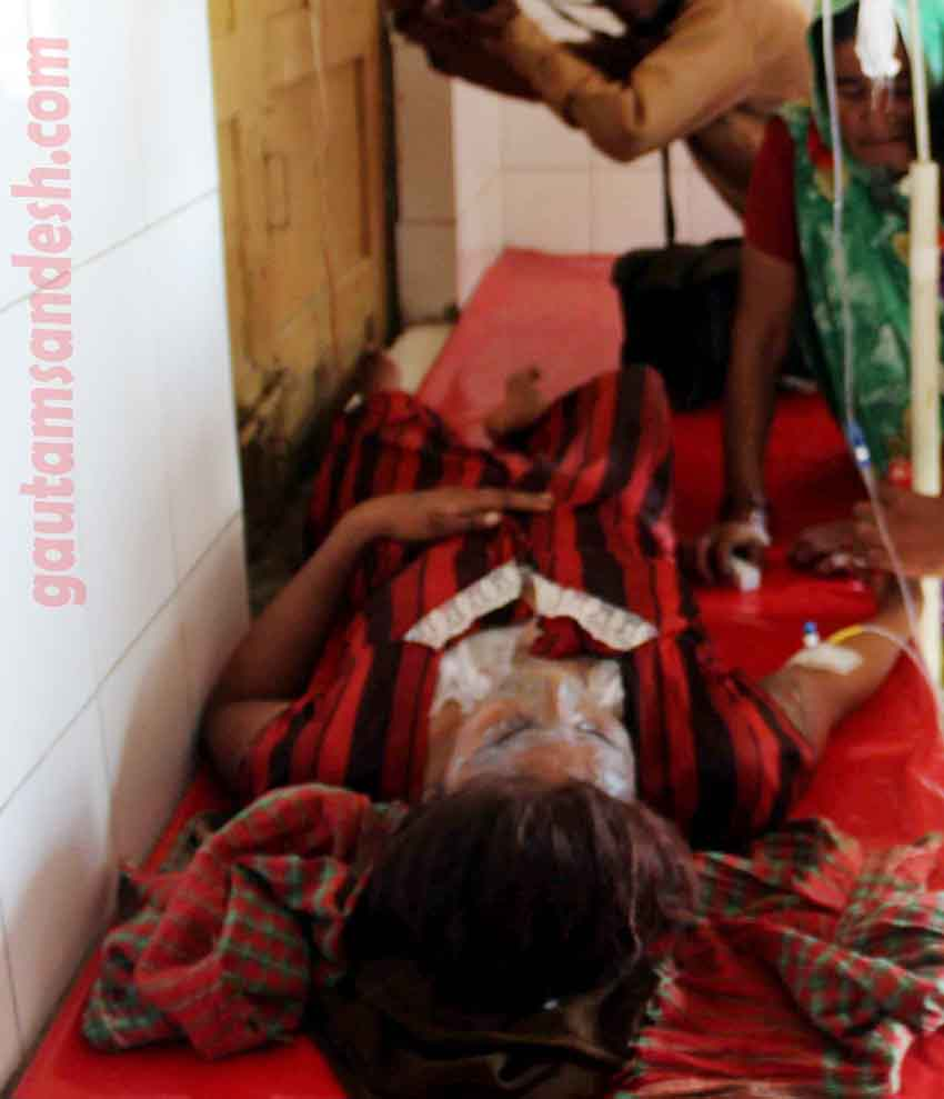 एसिड हमले से घायल कथा वाचिका का जिला अस्पताल में उपचार करते डॉक्टर।